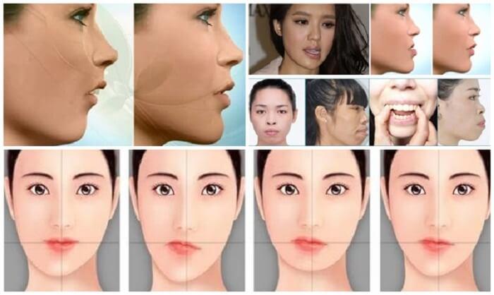 Phẫu thuật khuôn mặt bất cân xứng_1