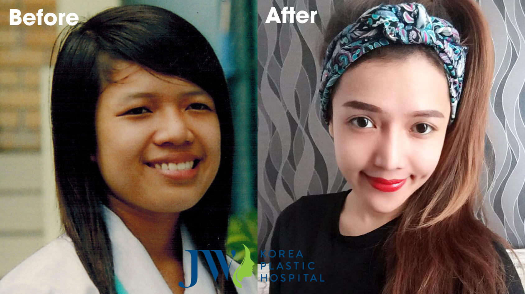 Bác sĩ nâng mũi đẹp ở TP.HCM - Chia sẻ từ người trong cuộc - Ảnh 2