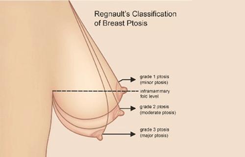 Nâng ngực sa trễ và những điều cần biết-hình 2