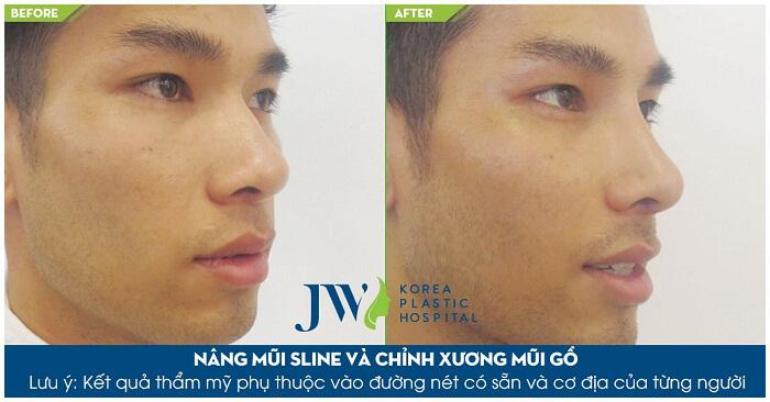 Sửa mũi ở đâu đẹp và an toàn TP.HCM-hình 9