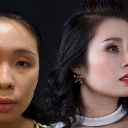 Diễn viên  hài Việt Trang lần đầu công khai mục đích thẩm mỹ mũi