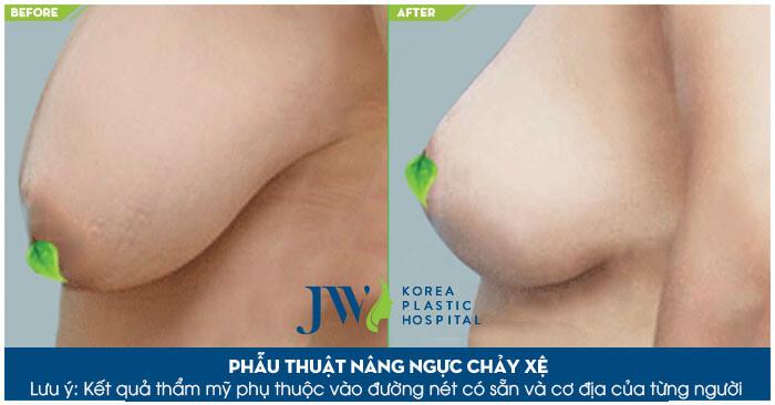 Nâng ngực chảy xệ giá bao nhiêu - Bệnh viện JW uy tín - Ảnh 2