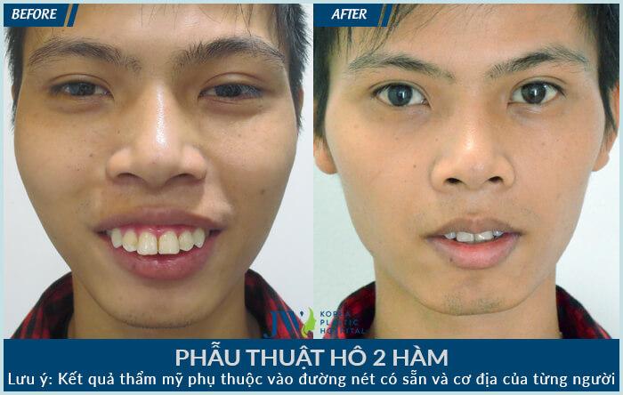 Cắt hàm hô – Hơn 1.000 ca phẫu thuật thành công tại Bệnh viện JW-hình 8