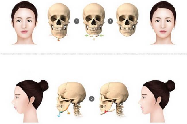 Phẫu thuật khuôn mặt bất cân xứng_2