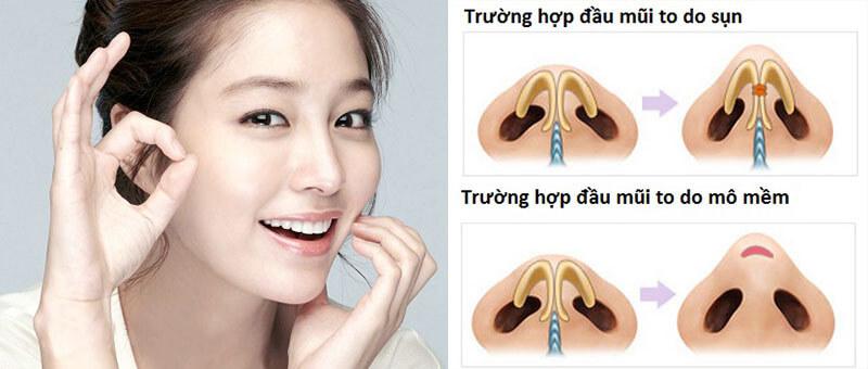 Phẫu thuật thẩm mỹ đầu mũi to_1