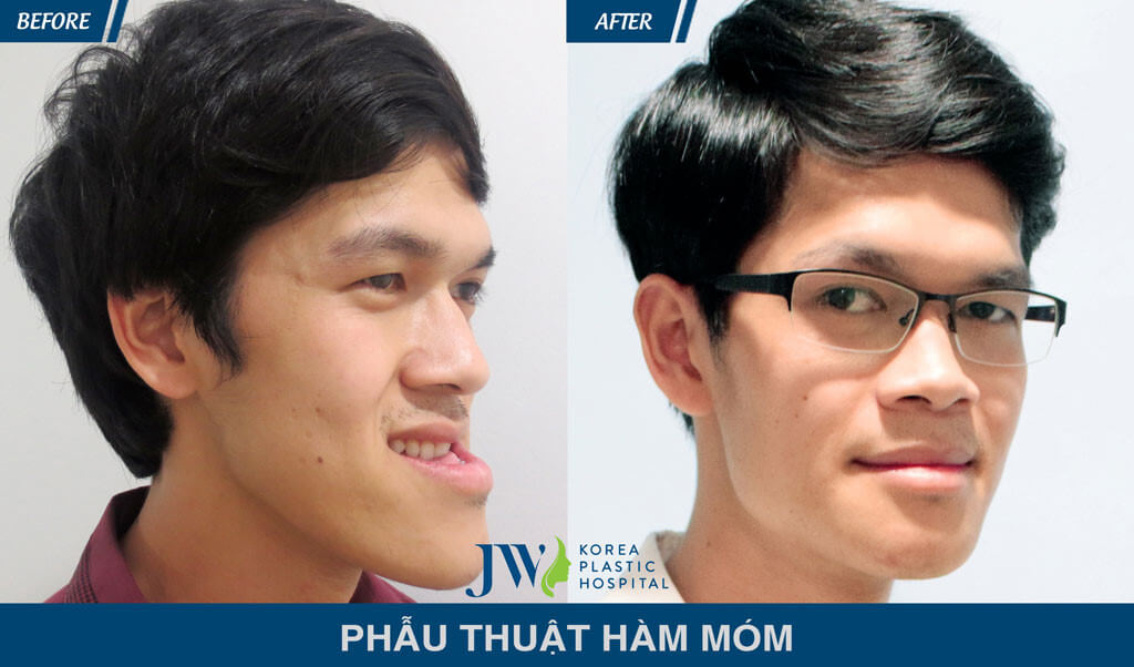 Bệnh viện Thẩm mỹ được mạng xã hội đánh giá cao nhất tại Việt Nam-hình 9
