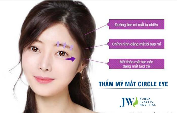 60 phút phẫu thuật mắt to tròn tự nhiên -hình 2