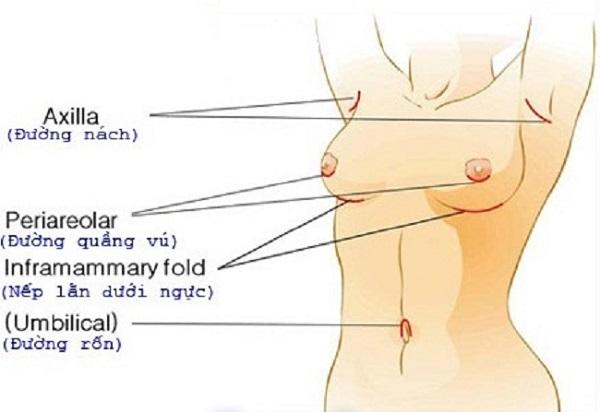 Nâng ngực nên chọn đường mổ nào-hình 2