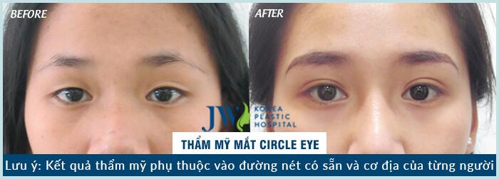 60 phút phẫu thuật mắt to tròn tự nhiên -hình 5