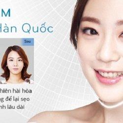 Giá độn cằm V Line – Công nghệ độc quyền Hàn Quốc