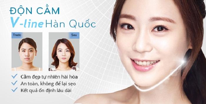 Giá độn cằm V Line - Công nghệ độc quyền Hàn Quốc - Ảnh 1
