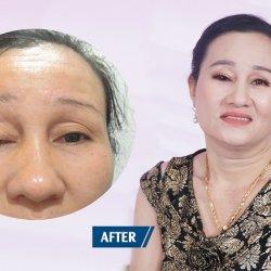 Giải cứu đôi mắt sụp mi bẩm sinh 48 năm