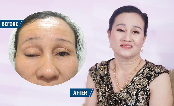 Giải cứu đôi mắt sụp mi bẩm sinh 48 năm | Bệnh viện thẩm mỹ JW