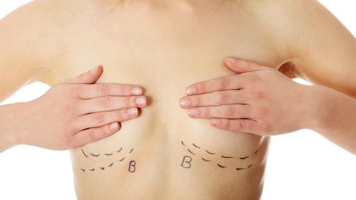 4 lý do chọn đường mổ nâng ngực dưới nếp vú - Ảnh 3