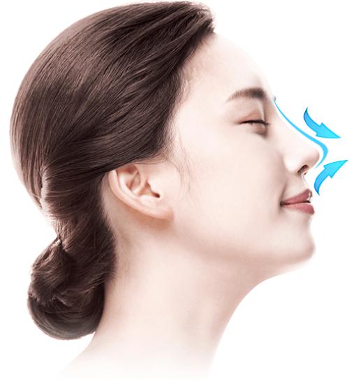 Giá nâng mũi S Line bệnh viện JW - Ảnh 1
