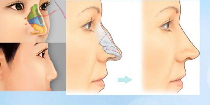 Bí quyết sửa mũi gồ an toàn và chuẩn đẹp-hình 2
