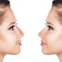 Bí quyết sửa mũi gồ an toàn và chuẩn đẹp