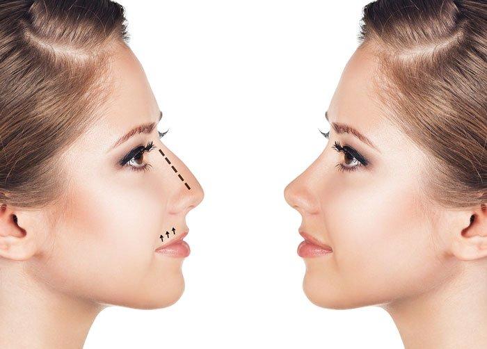 Bí quyết sửa mũi gồ an toàn và chuẩn đẹp-hình 1