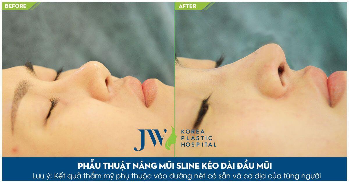 Sửa mũi cấu trúc, thay đổi 99% khuyết điểm gương mặt - Ảnh 6