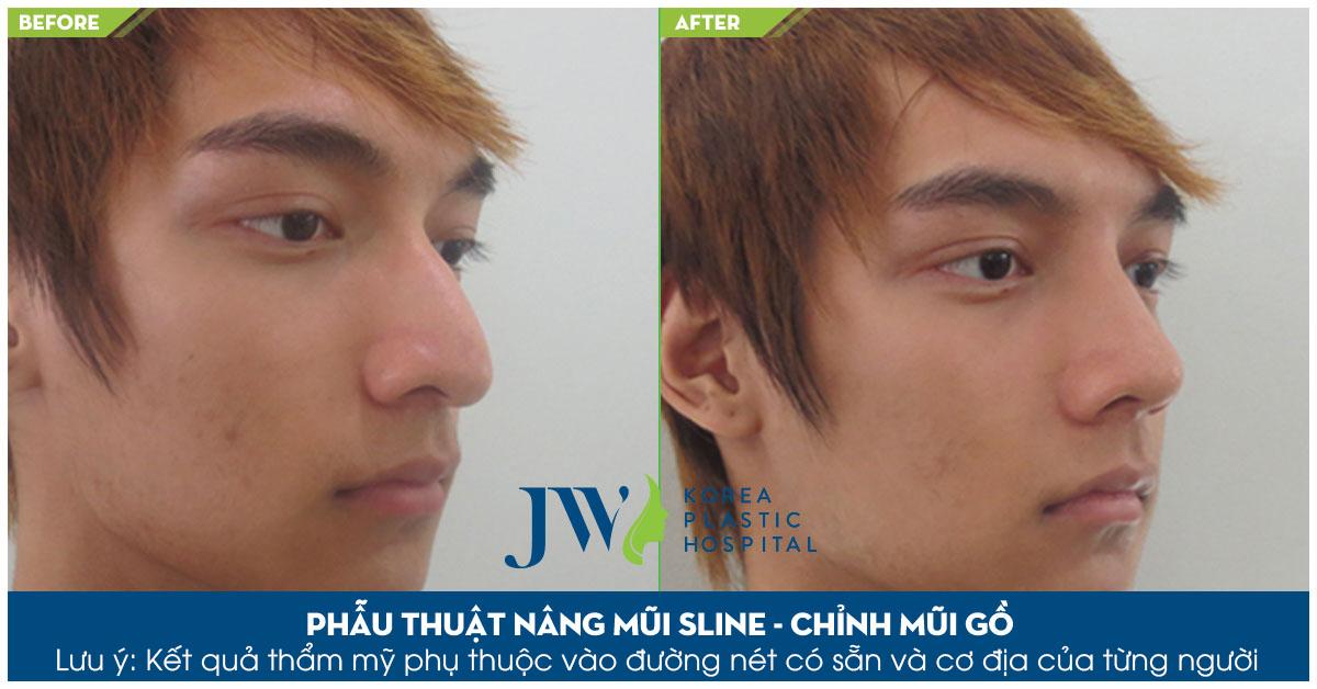 Bí quyết sửa mũi gồ an toàn và chuẩn đẹp-hình 7