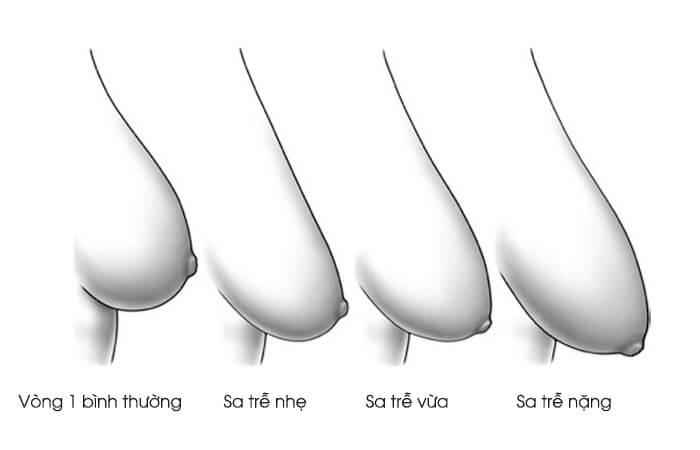 Nâng ngực chảy xệ bằng phương pháp nội soi - Ảnh 2