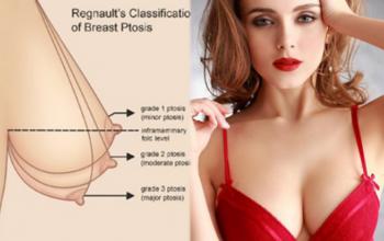 5 nguyên nhân ngực chảy xệ và những cách khắc phục