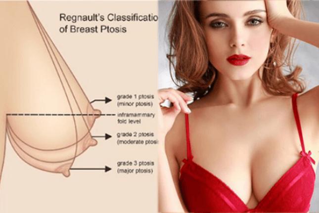 5 nguyên nhân ngực chảy xệ và những cách khắc phục-hình 1