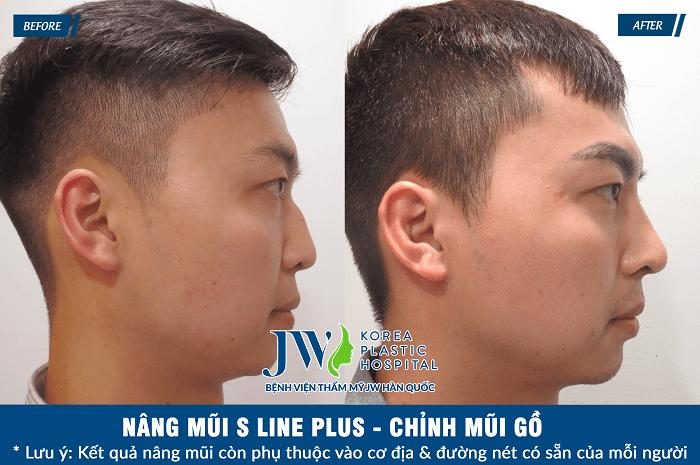 Giá nâng mũi S Line bệnh viện JW - Ảnh 7