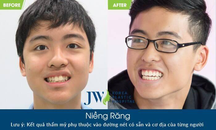 điều trị hô do răng với phương pháp niềng răng chỉnh nha - hình 3
