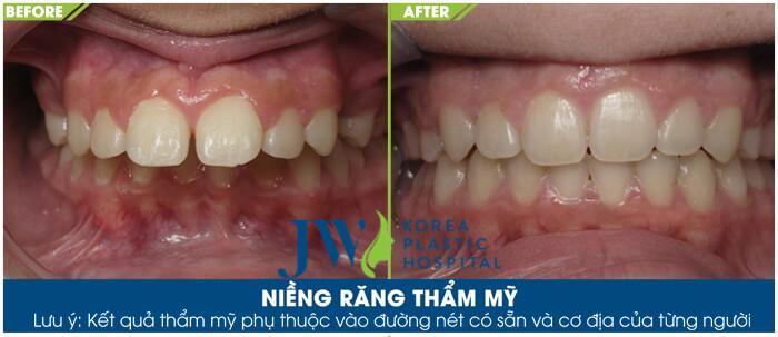 điều trị hô do răng với phương pháp niềng răng chỉnh nha - hình 2