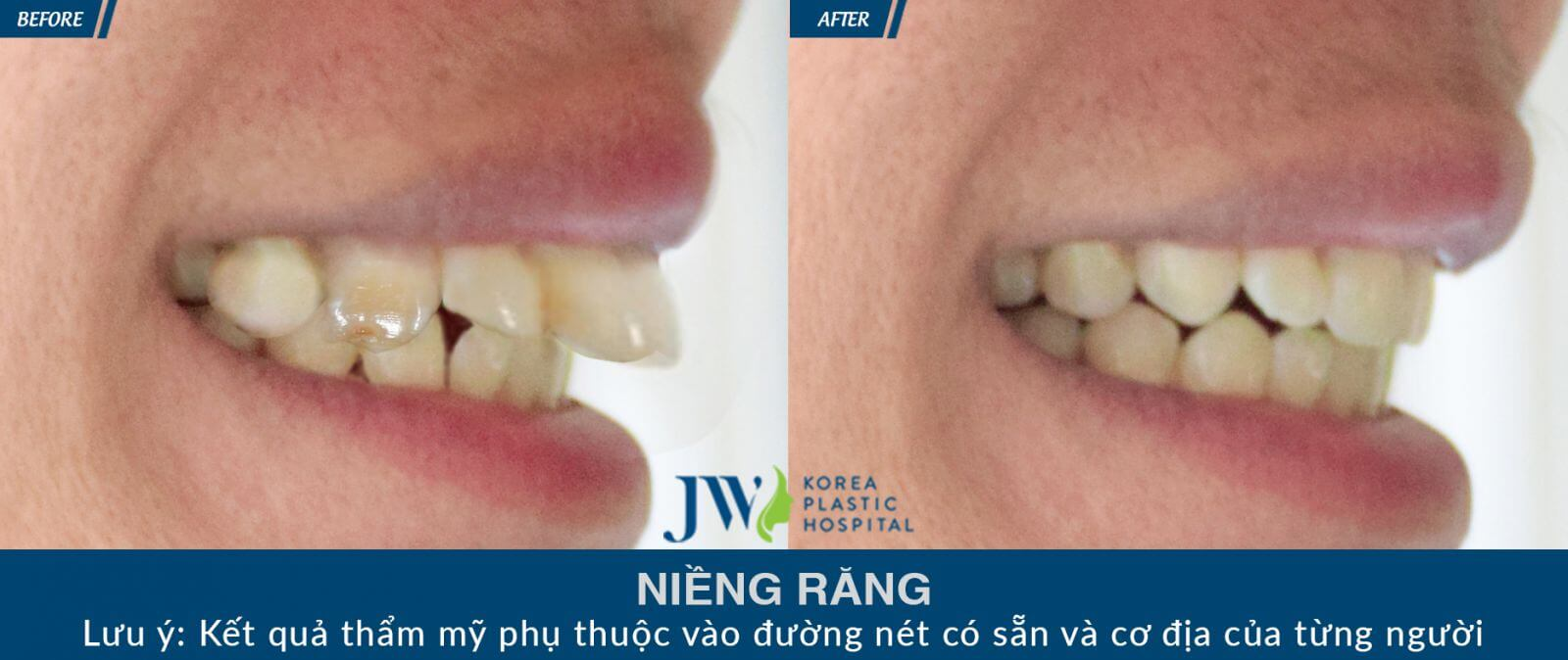 điều trị hô do răng với phương pháp niềng răng chỉnh nha - hình 1