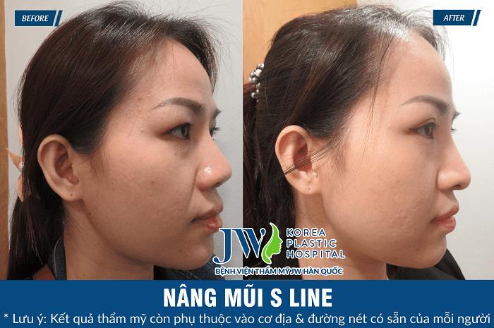 Nâng mũi S Line có đau không-hình 8