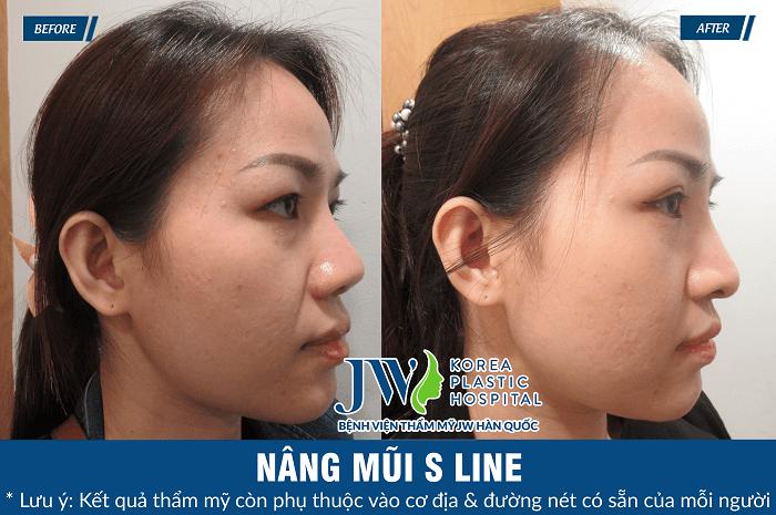 Sửa mũi cấu trúc, thay đổi 99% khuyết điểm gương mặt - Ảnh 5