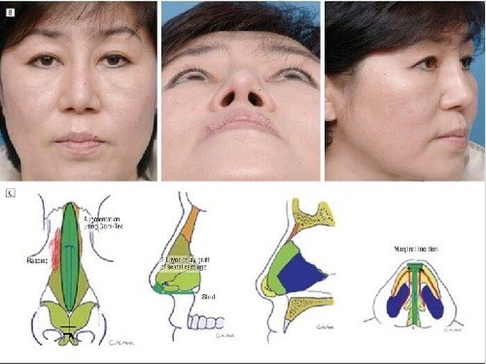 Sửa mũi cấu trúc, thay đổi 99% khuyết điểm gương mặt - Ảnh 2