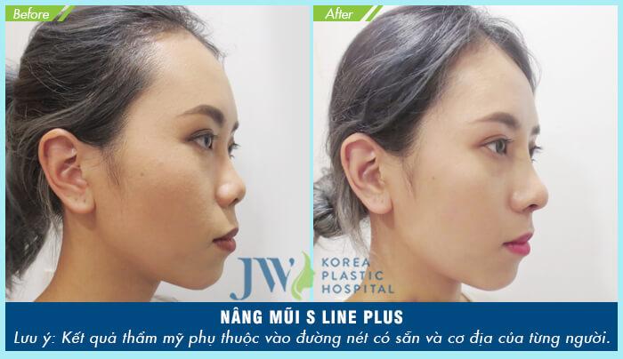 Giá nâng mũi S Line bệnh viện JW - Ảnh 8