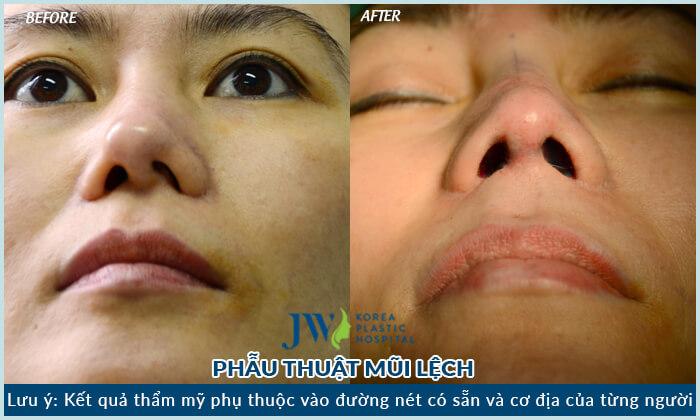 Sửa mũi đã phẫu thuật - Trải nghiệm người trong cuộc - Ảnh 2