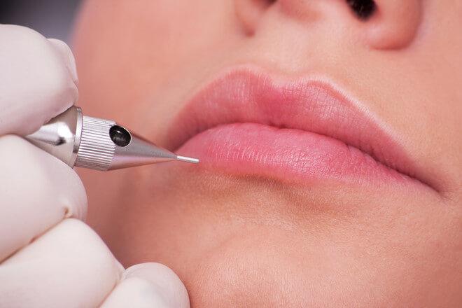 Phẫu thuật thẩm mỹ môi cho nam -hình 3