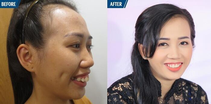 điều trị hàm hô móm không cần niềng răng - hình 3