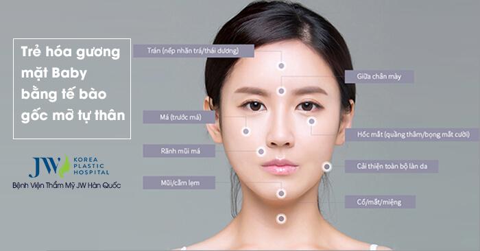 Cấy mỡ mặt Multi bí quyết cho vẻ đẹp không tuổi