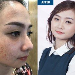 Cô gái Tây Ninh khôi phục làn da hỏng nặng do trị nám