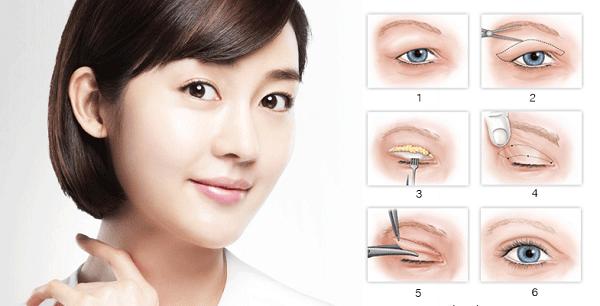 Bọng mắt là gì? Làm thế nào để loại bỏ bọng mỡ mắt 3