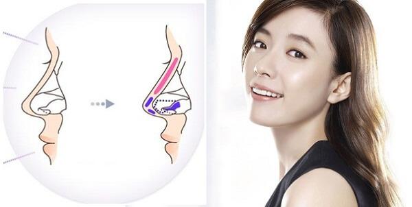 Nâng mũi bác sĩ Hàn Quốc tại thương hiệu uy tín - hình 2