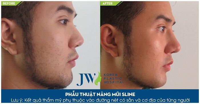 Nâng mũi cao cho nam bằng phương pháp nào-hình 4