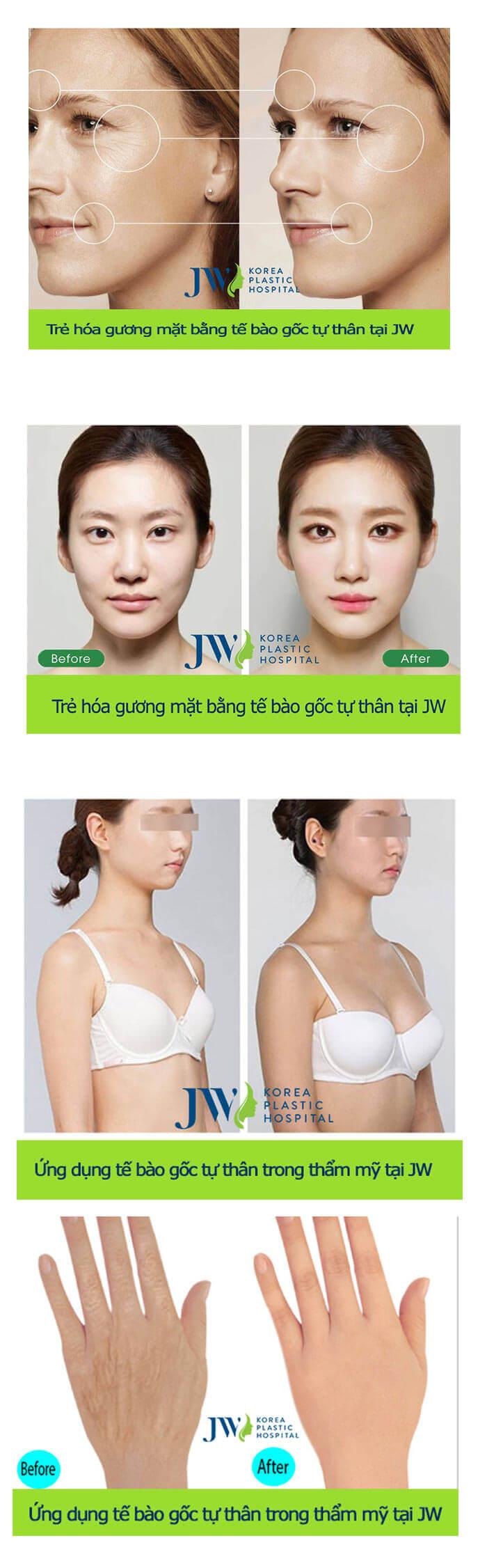 Trẻ hóa da mặt bằng tế bào gốc-hình 6