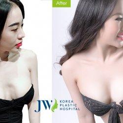 DJ Nhung Babie từng thẩm mỹ 2 lần khiến ngực biến dạng