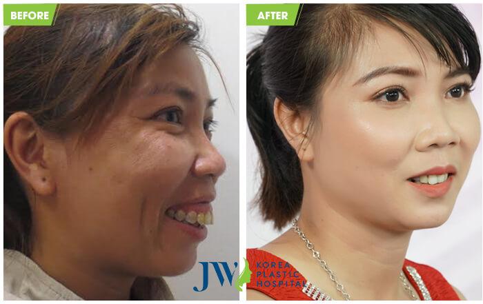 Khách hàng Vũ Thị Hồng sở hữu gương mặt cân đối nhờ phẫu thuật chỉnh hàm hô tại bệnh viện thẩm mỹ JW Hàn Quốc.