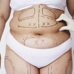 Hút mỡ bụng có ảnh hưởng gì không?
