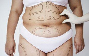 hút mỡ bụng có ảnh hưởng gì không