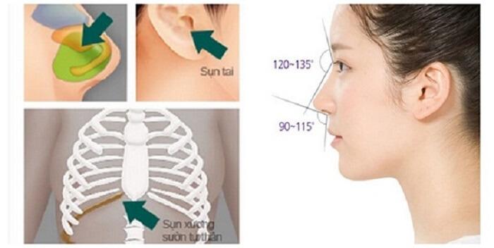 Sửa mũi hỏng ở đâu sau khi mũi gặp biến chứng - hình 3