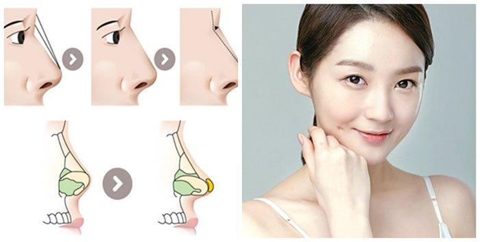 Làm thế nào khi bị dị ứng chất liệu nâng mũi - hinh 4